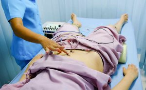 Electroacupuncture on abdomen