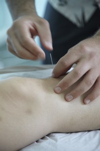 Acupuncture at Stomach 36