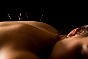 Acupuncture on the upper back